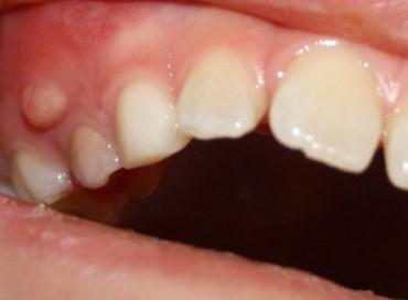 Зубной свищ — причины возникновения и лечение