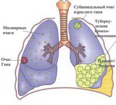 Таблетки от туберкулеза имеют классификацию