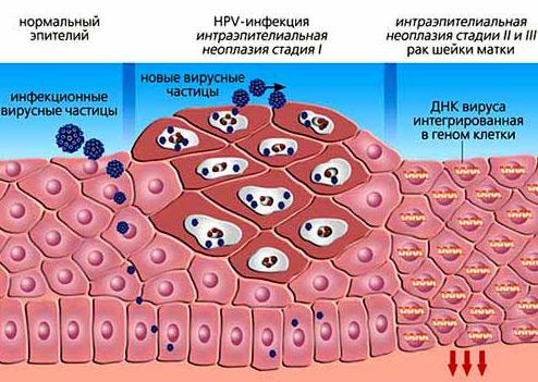 Лечение папилломы у мужчин нужно проводить своевременно