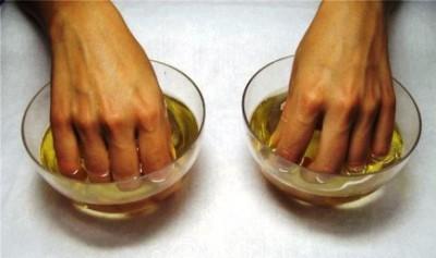 ногтевой панариций