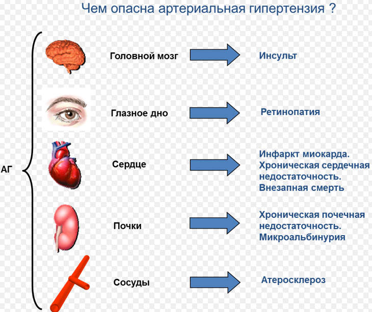 История болезни гипертоническая болезнь 2 стадия хсн ибс ...