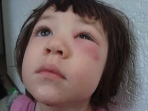 Опасные состояния, при которых могут появляться отеки под глазами