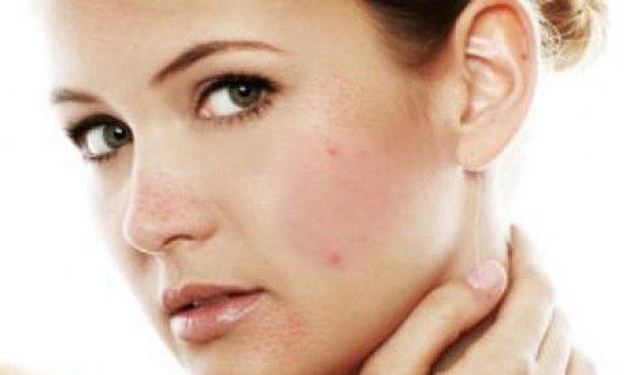Как лечить угревую сыпь? Главные аспекты