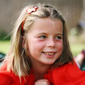 Причины отеков под глазами у детей