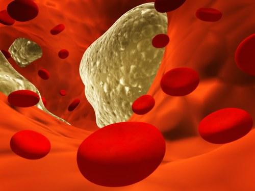 Что такое холестерин и какая должна быть его норма в крови