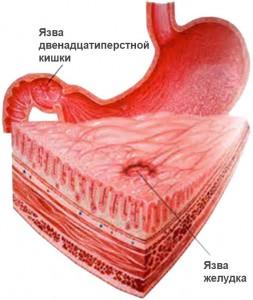 Общие симптомы язвы двенадцатиперстной кишки