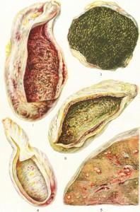 Причины и типы холецистита