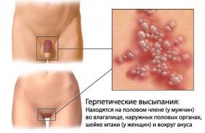 Эпидемиологическая картина протекания генитального герпеса