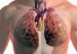 Профилактика фиброзного туберкулеза