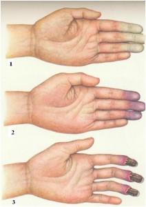 Трофические нарушения - это различные проблемы в организме, которые возникают при нарушении трофики