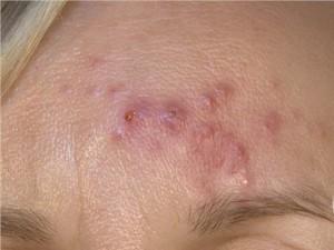 Заболевание лечится от месяца до нескольких, что зависит от степени запущенности болезни