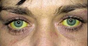 Пожелтеть глаза могут по разным причинам