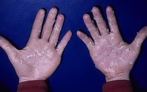 Болезнь грязных рук