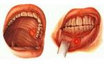 Стоматит на щеке: как вылечить без осложнений