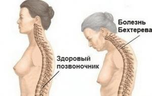 Болезнь Бехтерева деформирует позвоночник
