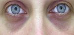 Почему под глазами синие круги? Причины, способы борьбы
