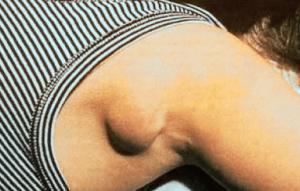 Воспаление лимфоузла подмышкой