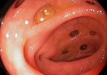 Дивертикулез сигмовидной кишки: лечение и диагностика