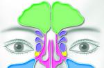 Как лечить фронтит в домашних условиях: мази, капли, ингаляции, полоскание