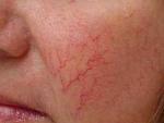 Крем против купероза на лице:  препараты фармацевтики и домашнего приготовления