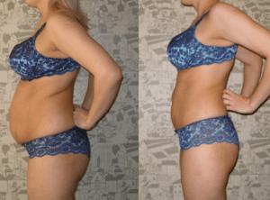 Расторопша поможет сбросить вес