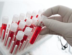 Анализ на содержание мочевой кислоты