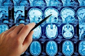 Глиома головного мозга - опухоль в голове