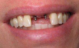 Отзывы благодарных пациентов о зубных имплантантах