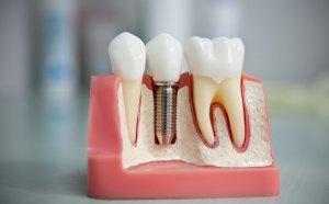 Положительные отзывы о вживлении зубов