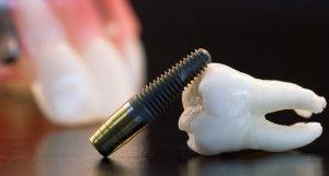 Отзывы о вживлении белых искусственных зубов