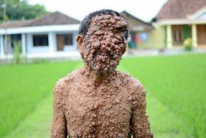 Нейрофиброматоз Реклингхаузена - опухоли по всему телу