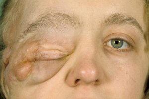 Диагностические процедуры больных с патологией нейрофиброматоз реклингхаузена