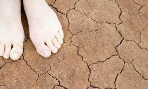 Мази и травы в лечении экземы на ногах