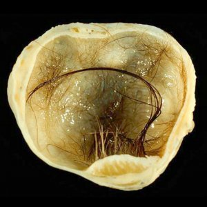 Виды кист на яичниках