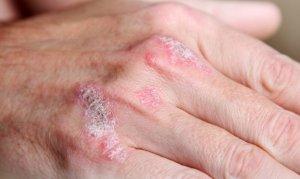 Хронические высыпания при псориазе
