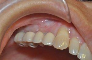Восполнение утраченного объема кости зуба