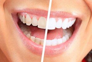 Несоблюдение правил гигиены полости рта