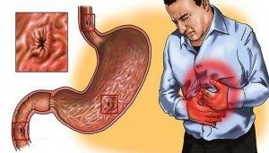 Причины эрозивного гастрита