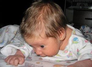 Факторы, приводящие к чрезмерному потоотделению у детей