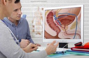 Симптомы кистозного поражения в простате