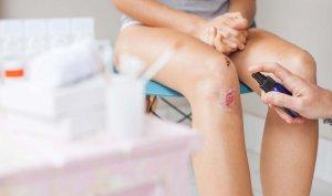 Механическое повреждение кожных покровов