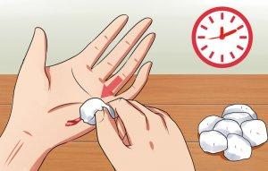 Как ускорить заживление ран и ссадин